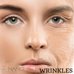 Free Wrinkles And Smile Lines Tutorial – 11 minutes (with purchase of 2.2ml HA)